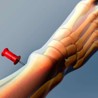 IO Needle Insertion, Medical Animation