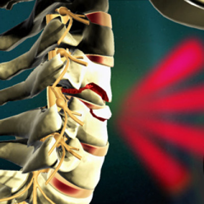Medical Animation Spinal Cord Treatment
