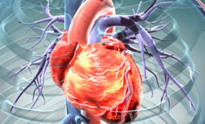 cardiovascular medical device