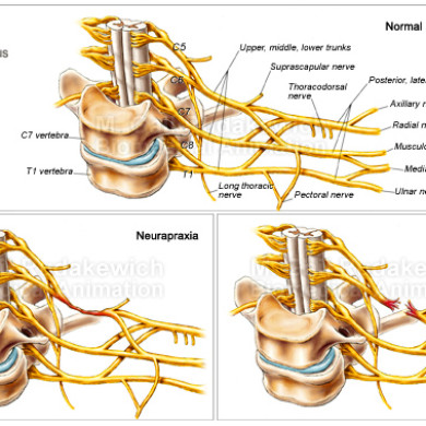 Obstetrical Brachial Plexus Injuries