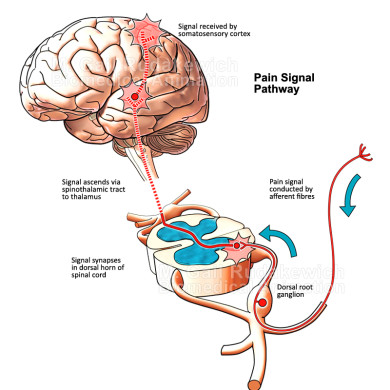 Pain Signal Pathway Illustration