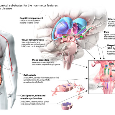 Parkinson's Disease illustration (Client - Dr. Anthony Lang)