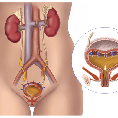 Conceptual illustration of Overactive Bladder